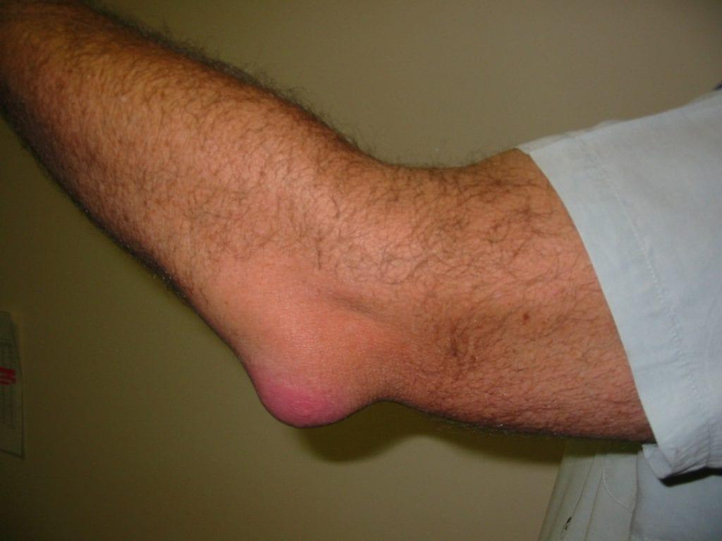 Olecranon Bursitis (Student's Elbow)