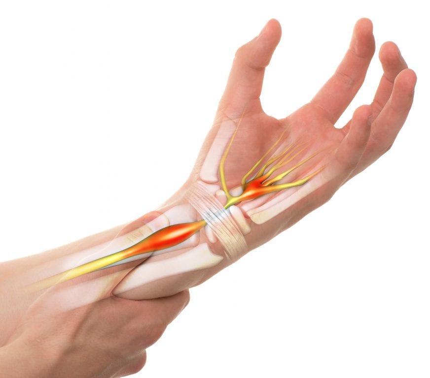 nerve entrapment