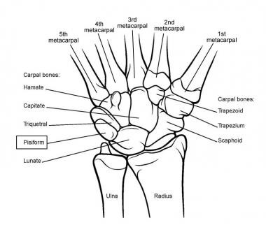 Arthritis of the Wrist and Hand