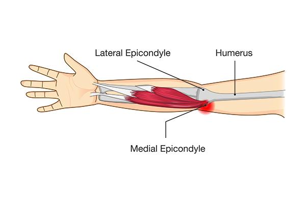 Tennis and Golfer's Elbow (Epicondylitis)